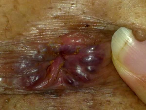 de anus Irritation traitement augmentin l