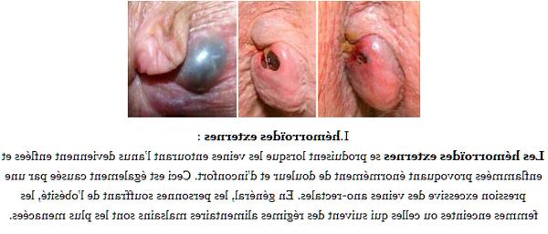 traitement anti hemorroide