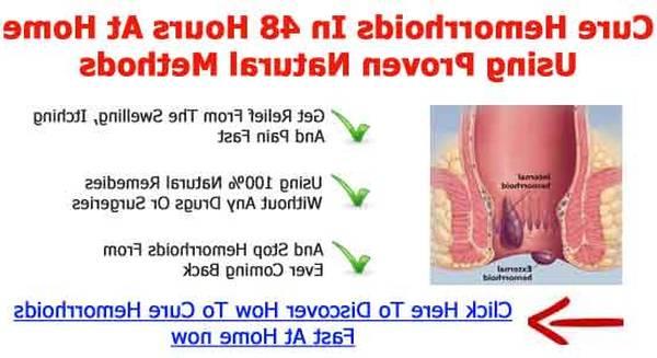 Hémorroides Symptomes 5de0b8666f1a9