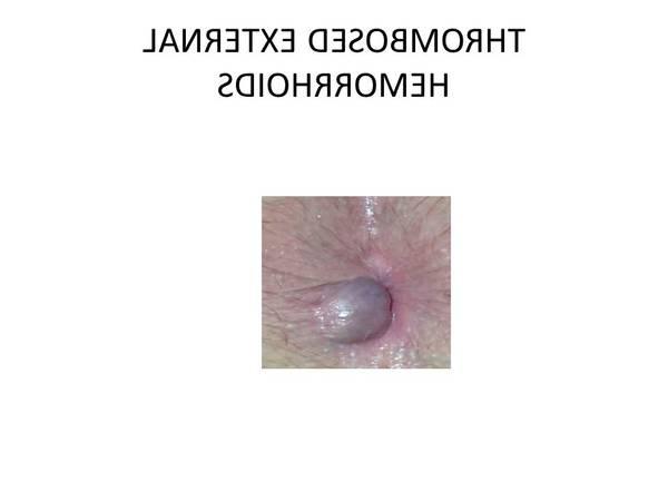 hémorroïdes traitement avis