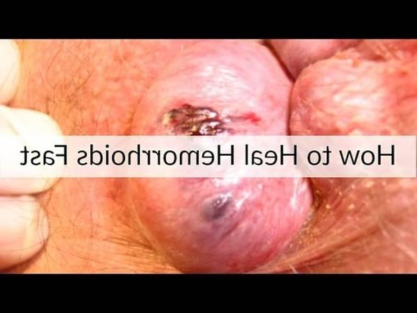 Hemoroide Cause 5de0b894b5c21
