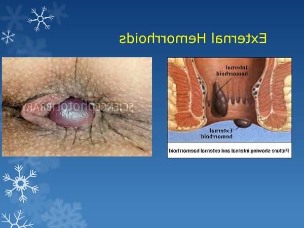Hemoroide Interne 5de0b806b4767