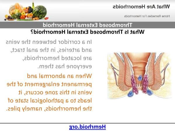 Hemorroide Saignement 5de0b806bb2c7