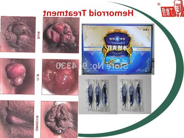 Hemorroides Homeopathie 5de0b86668f0c