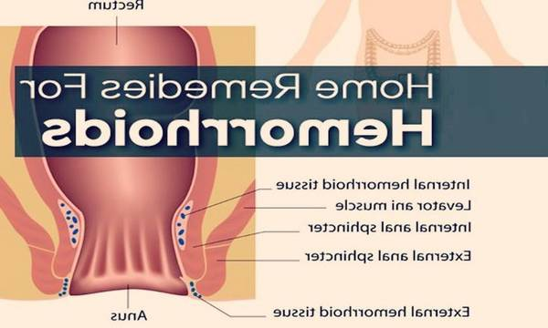 Pommade Pour Hémorroïdes 5de0b737b2657