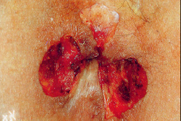 traitement hemoroide chat